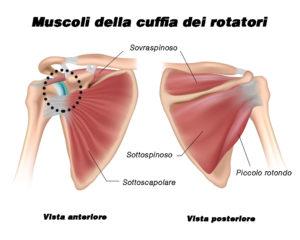 Cuffia rotatori spalla